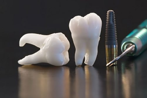 3d-printing-tooth